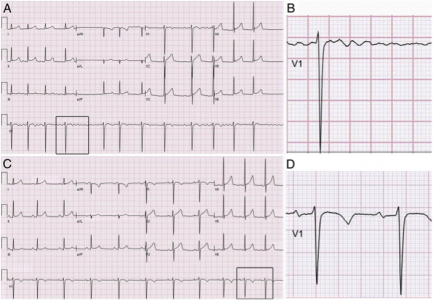 FIGURE 1 ECG of a 16-year-old boy with AF induced by commotio cordis secondary to a blunt chest trauma. A, ECG reveals AF with irregular ventricular rhythm; B, enlarged insert from lead V1; C, follow-up ECG 3 days after presentation showing spontaneous resolution to normal sinus rhythm; D, enlarged insert from lead V1.